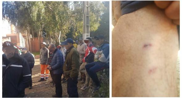 """عاجل… """"مشرملين"""" يعتدون بالكلاب على عمال البلدية بعين اسردون وإصابة عامل بعضة خطيرة -التفاصيل-"""