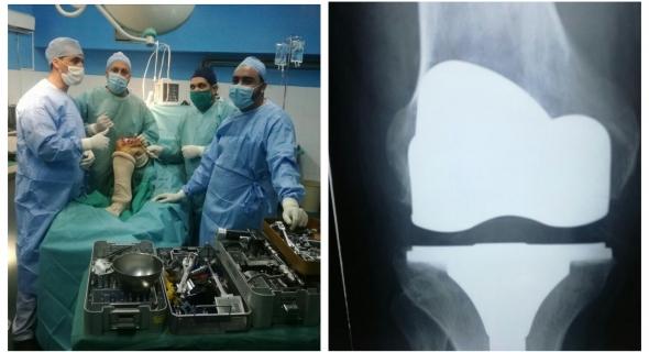 برافو ويستحقو تشجيع (الصور)… هذا هو الفريق الطبي لجراحة العظام والمفاصل الذي تمكن من إجراء اول عملية وضع ركبة اصطناعية بالمستسفى الجهوي ببني ملال والوزارة مطالبة بالالتفات لهذا المستشفى