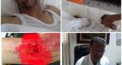 طاقم طبي ببني ملال يترأسه الدكتور بندومو يتمكن من إعادة يد مبتورة لسائق ضحية حادثة سير -فيديو-
