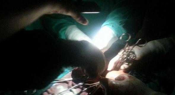 برافو عليها… انقطاع مفاجئ للكهرباء يدفع طبيبة للاستعانة بضوء الهاتف النقال وتنقذ حياة سيدة حامل خلال عملية جراحية