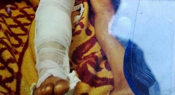 مواطن ببني عياط يتعرض لكسر في ساقه جراء اعتداء وجمعية حقوقية تدخل على الخط وتطالب بانصافه