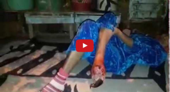 فيديو صادم..واقع الصحة وانجازات الحسين الوردي تتلخص في حالة انسانية محزنة تموت في صمت بمنزلها ببني ملال