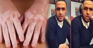 """هشام مسرار مقدم برنامج -كي كنتي كيوليتي- يتحدث عن إصابته بالبرص ويوجه رسالة مؤثرة للمغاربة :"""" انا مرتاح ودكشي ديال الله"""""""